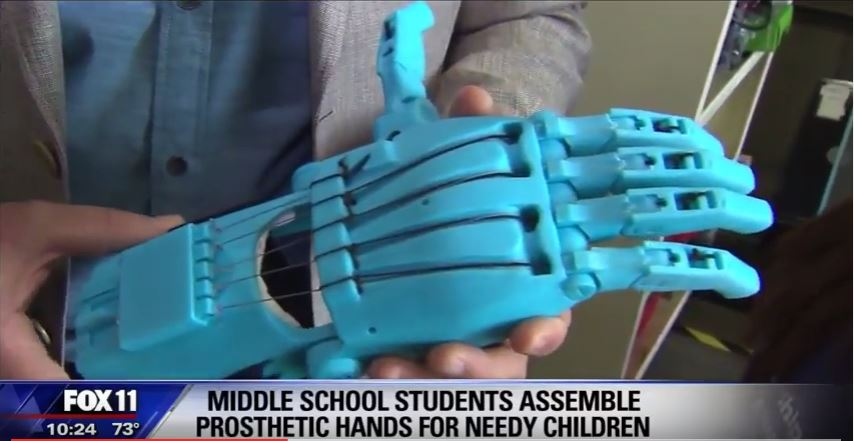Prosthetic Hands Made at Rogers